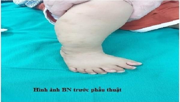 Bé trai 1 tuổi bị dị tật phức tạp, bàn chân phải có 9 ngón. Ảnh: BVCC