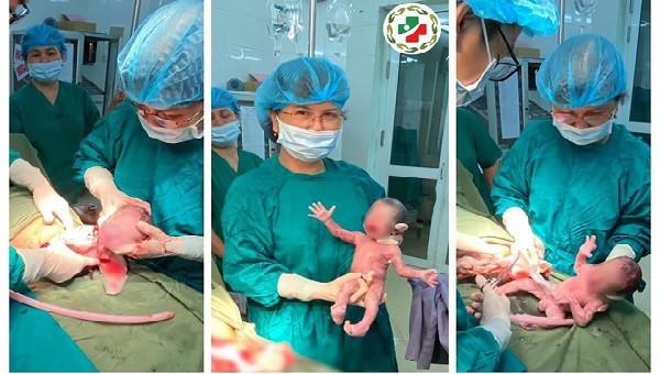 Đây là ca sinh 3 cùng trứng hy hữu tại Bệnh viện Đa khoa tỉnh Tuyên Quang. Ảnh: BVCC