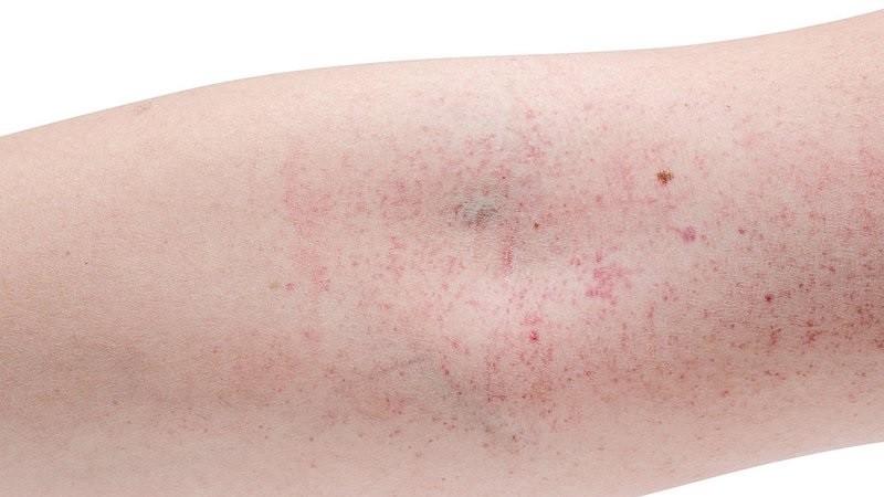 Theo báo cáo của Sở Y tế Hà Nội, tính từ đầu năm 2020 đến nay, thành phố ghi nhận 1.574 trường hợp mắc sốt xuất huyết.