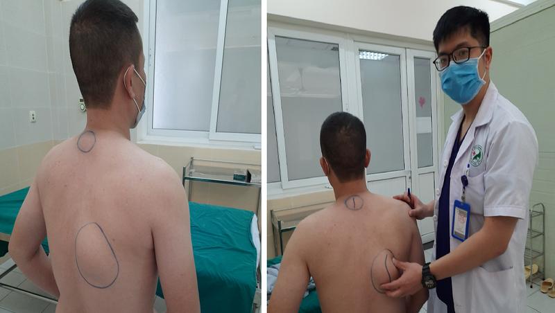 U mỡ phát hiện trên người bệnh nhân có kích thước lên tới 20x20cm. (Ảnh: BVCC)