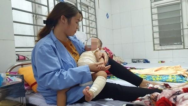 Sau khi được bác sĩ cấy ghép da, bé A. sẽ được xuất viện trong vài ngày tới (ảnh: BVCC)