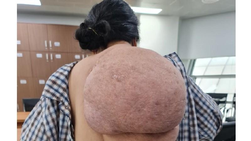 """Người phụ nữ """"gánh"""" khối u khổng lồ trên lưng suốt 2 năm"""