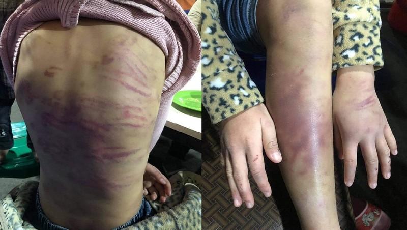 Bé Mai bị mẹ bạo hành.