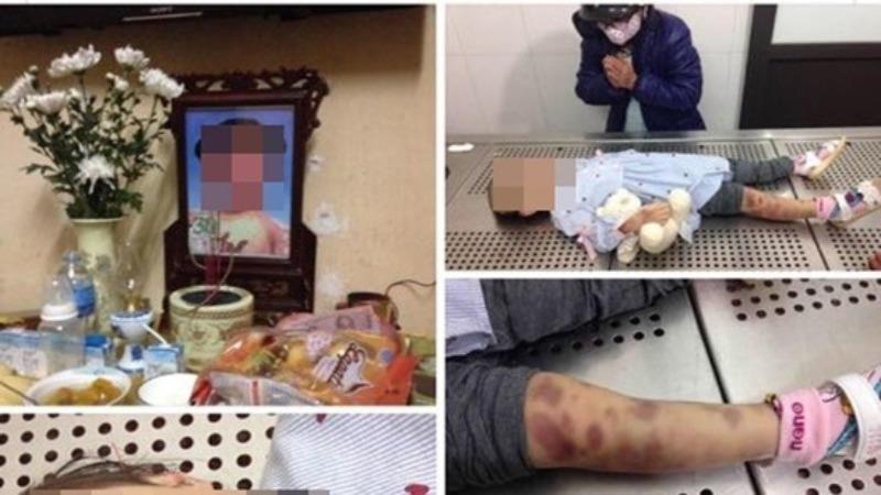 Hình ảnh bé gái tử vong với nhiều vết thương trên cơ thể được đăng trên mạng xã hội.