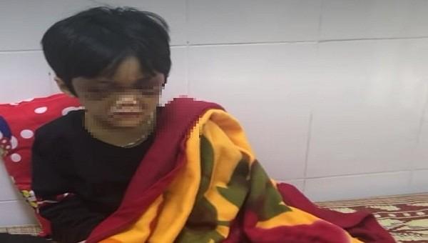 Cháu bé 6 tuổi nghi bị bạo hành, bỏ đói
