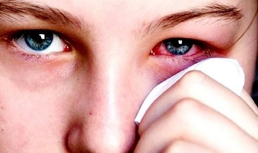Những điều bạn cần biết về đau mắt đỏ