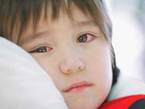 Kết quả hình ảnh cho đau mắt đỏ trẻ em
