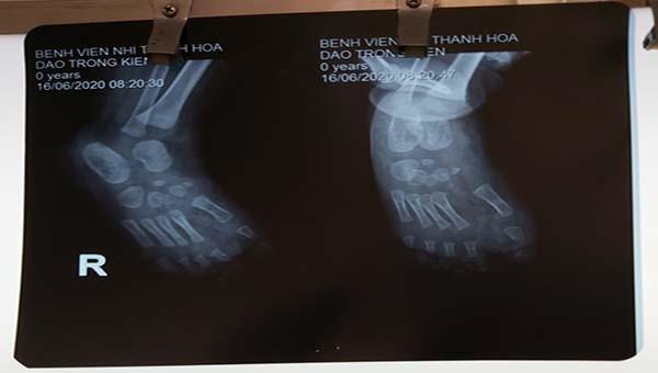 Hình ảnh XQ trước ca phẫu thuật