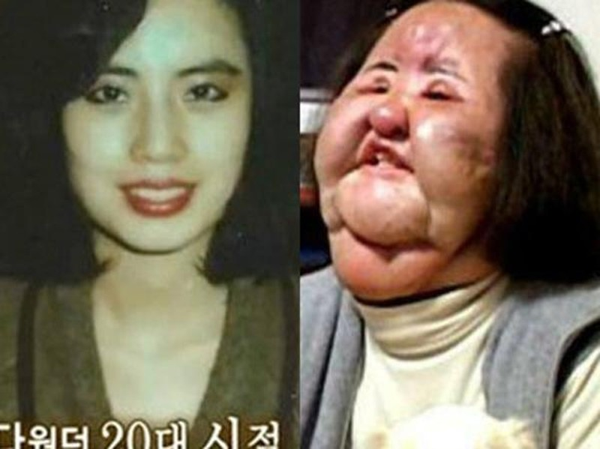 Han Mi Ok khi trẻ và khi khuôn mặt bị biến dạng vì thẩm mỹ.