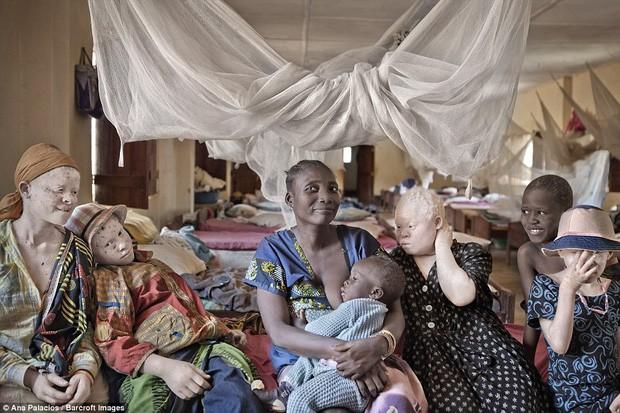 Những trung tâm dành cho người bạch tạng tại Tanzania.