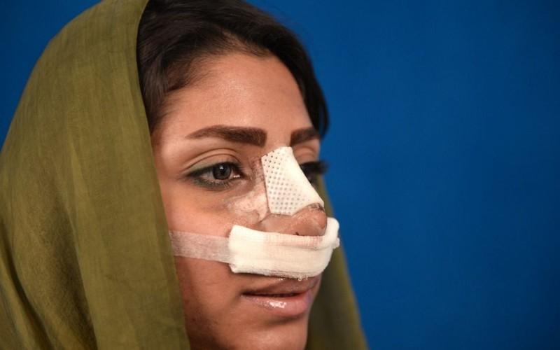 Tin được không: Phụ nữ Iran vẫn đổ xô đi thẩm mỹ dẫu luôn phải đội khăn kín mít