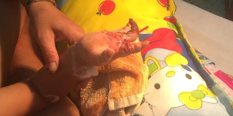 Em bé 3 tuổi bị đứt 4 ngón tay vì nghịch xe đạp điện