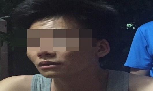 Nam thanh niên tự đánh bầm mặt mình rồi báo công an bị cướp
