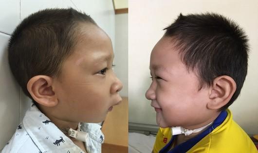 Huế: Phẫu thuật mặt thành công cho những trẻ em bị dị tật bẩm sinh