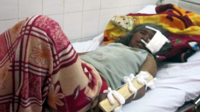 6 trong 25 nạn nhân phải mổ vì chấn thương nặng. Ảnh: Tuỳ Phong