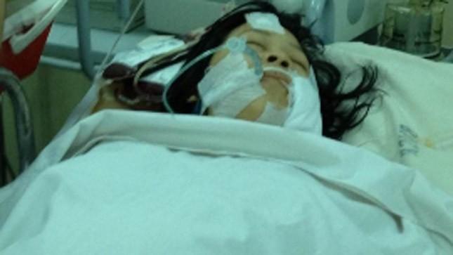 Nạn nhân đang được điều trị tại bệnh viện Chợ Rẫy.