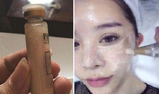 Vỡ mộng làm đẹp với trào lưu cấy phấn cho da