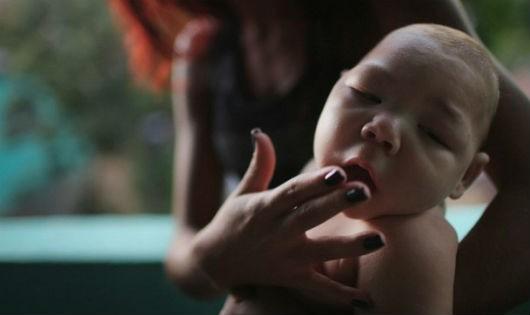 Virus 'ăn não người' báo động với các bà mẹ mang thai