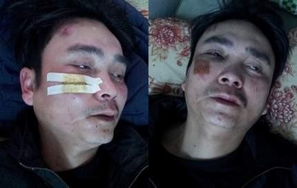 Hai nạn nhân đang được điều trị tại bệnh viện