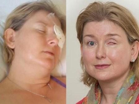 Một bệnh nhân bị mất mắt vì đeo kính áp tròng