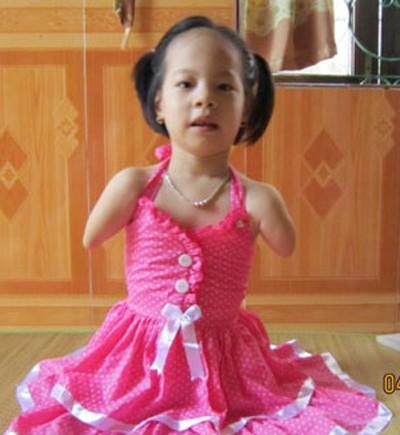 Nguyễn Linh Chi sinh ra đã không may mắn như những đứa trẻ khác.