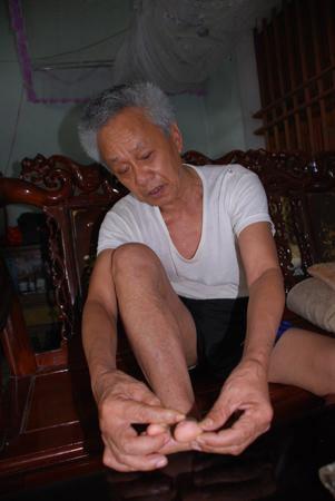 Ông Nông Quốc Vinh chỉ vết sẹo ở chân mình.