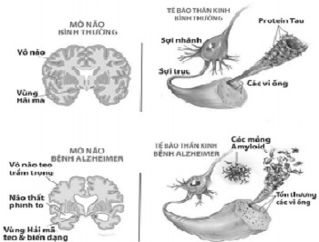 Gốc tự do làm tổn thương tế bào thần kinh khiến não teo nhỏ và thoái hóa trầm trọng